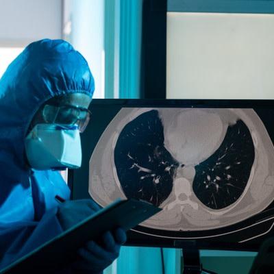 小说3 d & # 039; Lung-On-A-Chip& # 039;新型COVID-19治疗方法测试模型