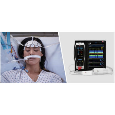 Study Investigates the Ability of Masimo O3® to Monitor Septic Shock Patients & Predict Mortality