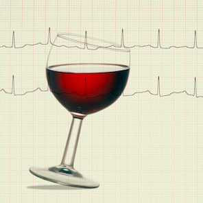 Increase in Stroke Risk With Greater Alcohol Intake