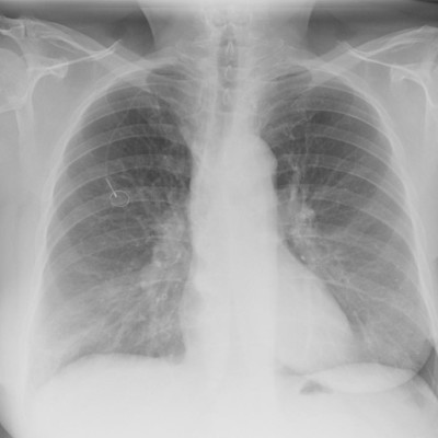 Lessons Learned: COVID-19 Radiology Response in a Major NYC Hot Zone