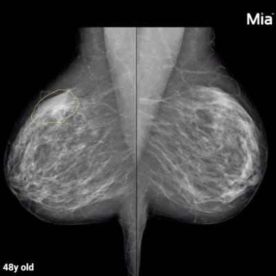 AI Solution for Breast Cancer Detection Launched