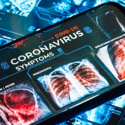 Use of Lung Ultrasound in COVID-19: ESR Issues Report