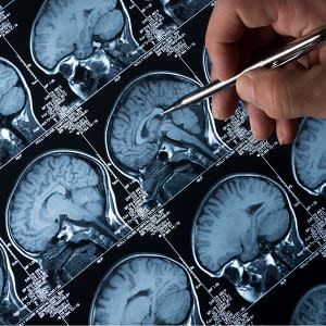 fMRI Brain Scan for AD
