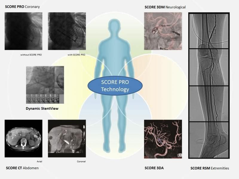 Fluoroscopy system (X-ray radiology) / for diagnostic fluoroscopy / with C-arm Trinias F12 Shimadzu Europe