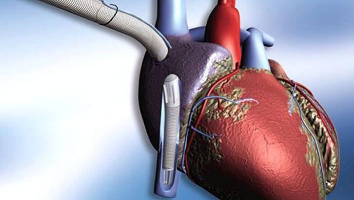 Venous catheter MAQUET