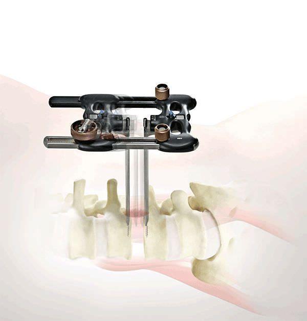 Orthopedic surgery retractor / for minimally invasive surgery / spine RAVINE® K2M
