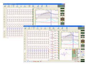 Cardiac stress test equipment Easy ECG Stress Ebneuro