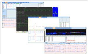 Cardiac Holter monitor Easy ECG Holter Ebneuro