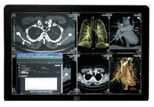 Radiology information system RIS SYNAPSE® FUJIFILM Europe