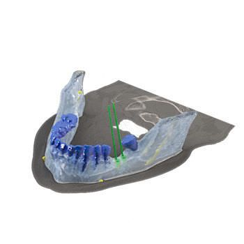 Dental implant simulation software / modeling / 3D viewing / for implantology Reconstruction 3D Drive Dental Implants
