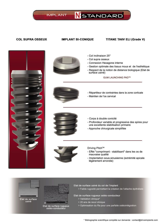 Cylindrical conical dental implant / titanium / internal hexagon / self-tapping N-Standard Drive Dental Implants