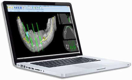 Planning software / 3D viewing / 3D simulation / for implantology Planning 3D Drive Dental Implants