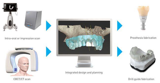 CAD software / CAM / for dental prosthesis design / medical DWOS Dental Wings