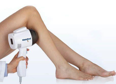 Skin diagnosis system / skin pigment analysis MelaFind® Mela Sciences