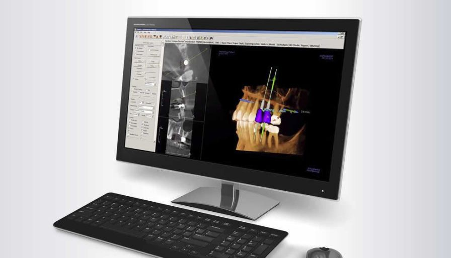 3D viewing software / for dental imaging INVIVO 5.3 Gendex Dental Systems