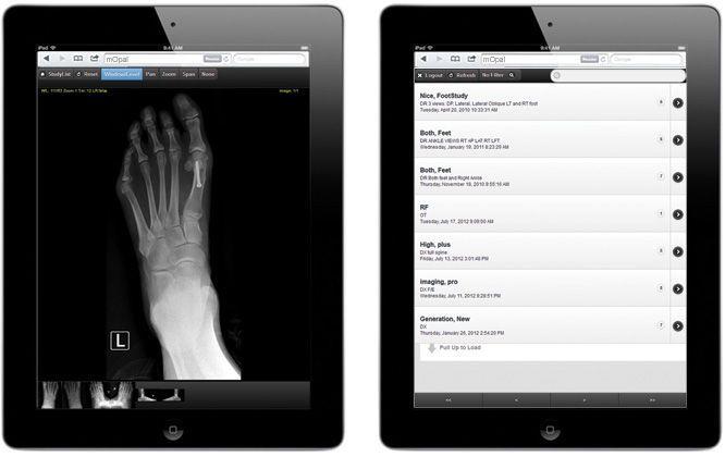 Medical imaging iOS application / for PACS mOpal 20/20 Imaging