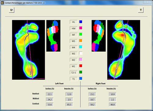 Analysis software / viewing / rehabilitation / for healthcare facilities footscan® version 7 RSscan International