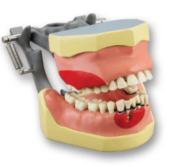 Denture anatomical model KM-210 (C) Columbia Dentoform®