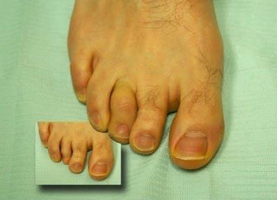 Toe external cosmetic prosthesis The Anaplastology Clinic