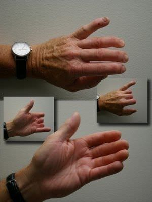 Finger external cosmetic prosthesis The Anaplastology Clinic