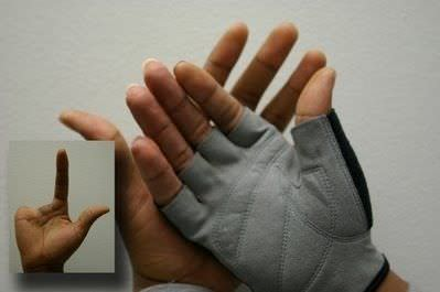 Partial external cosmetic prosthesis / hand The Anaplastology Clinic