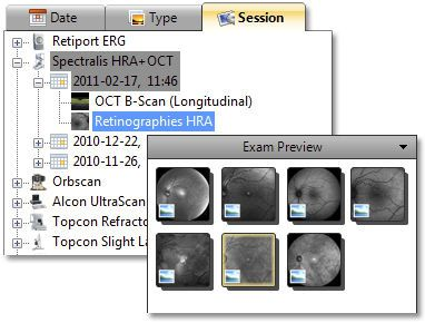 Viewing software / diagnostic / medical / ophthalmology OphthalSuite BlueWorks