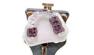 Dental articulator Galetti Kerr