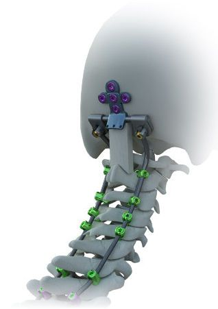 Occipito-cervico-thoracic spinal osteosynthesis unit / posterior AVALON™ Alphatec Spine