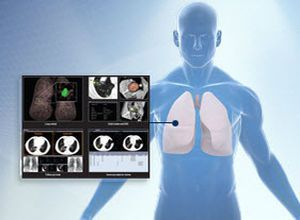 3D viewing software / diagnostic / for endoscopy / medical Xelis Lung Infinitt Healthcare Co., Ltd.