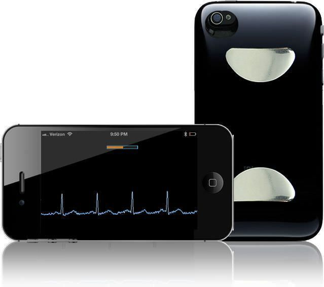 Telemonitoring iOS application / cardiac ECG Check CardiacDesigns