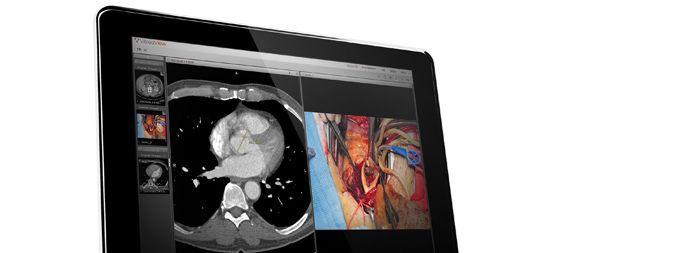 Viewing software / sharing / medical imaging / medical VitreaView® Vital