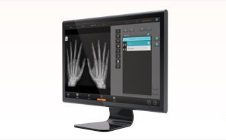 Reporting software / analysis / medical imaging / medical QUANTORMED+ 3Disc Imaging
