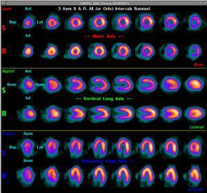 Nuclear medicine computer workstation / medical NUQUEST® Medx Technologies
