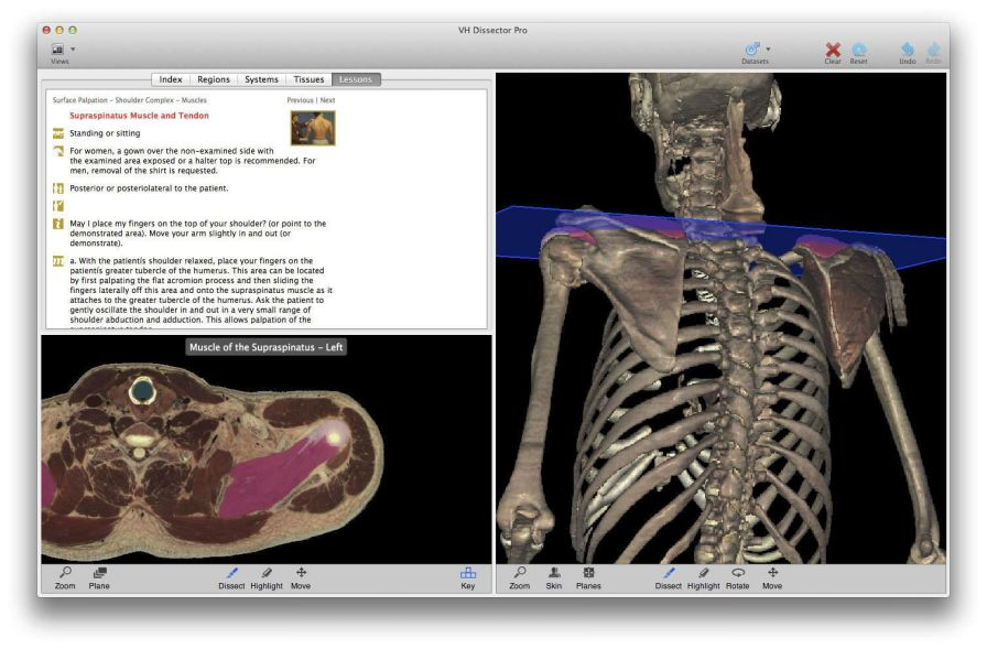 Training software / physical therapy / medical VH Dissector for Physical Therapy Education TolTech