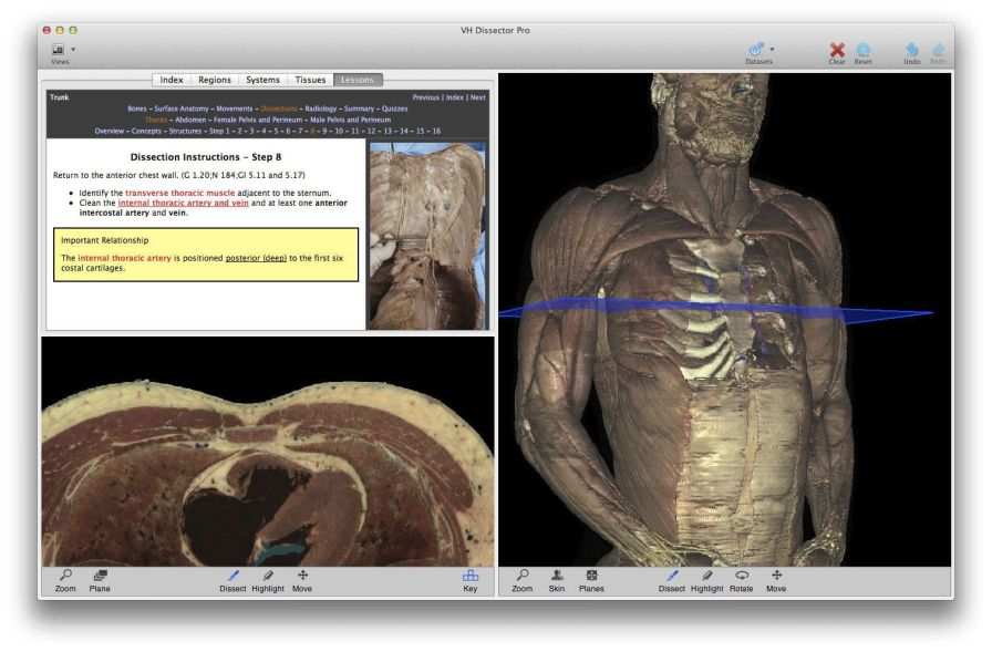 Training software / medical VH Dissector for Medical Education TolTech
