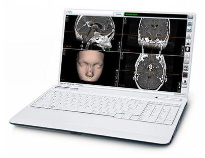 Preoperative planning software / medical / surgery NOVA PLAN XION