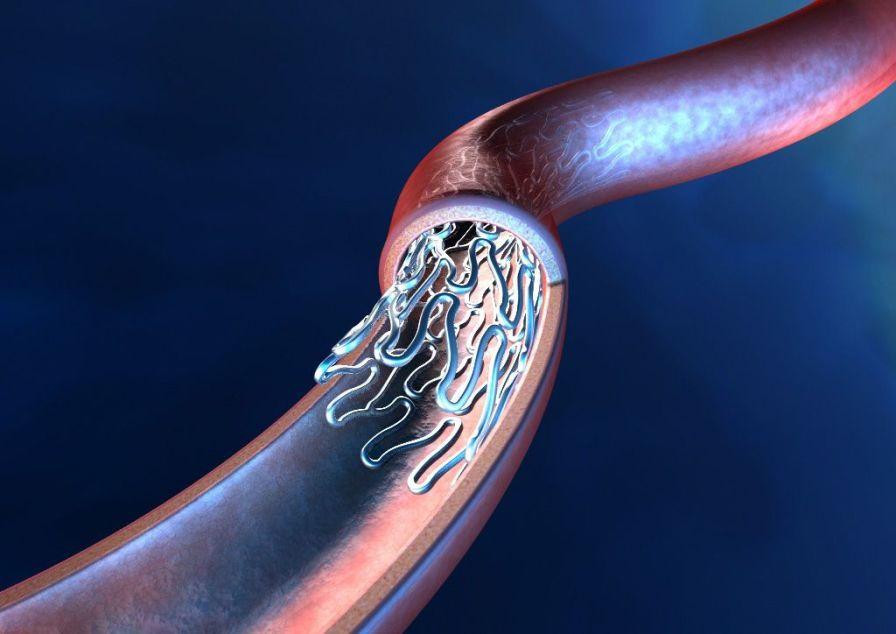 Coronary stent / metal / bare CCflex Eucatech
