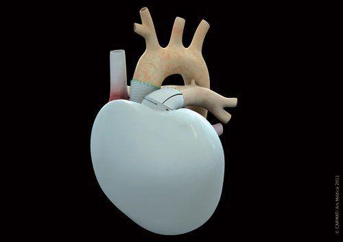 Artificial heart CARMAT Carmat