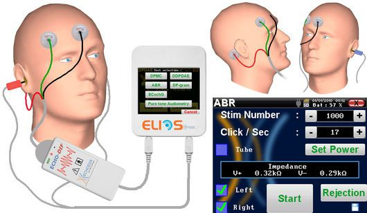 Evoked auditory potential measurement system (audiometry) / digital ABR Echodia