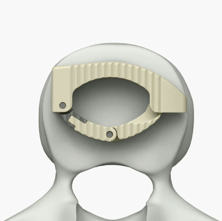 Lumbar interbody fusion cage / thoracic / thoraco-lumbar / lateral LONGBOW™ Life Spine