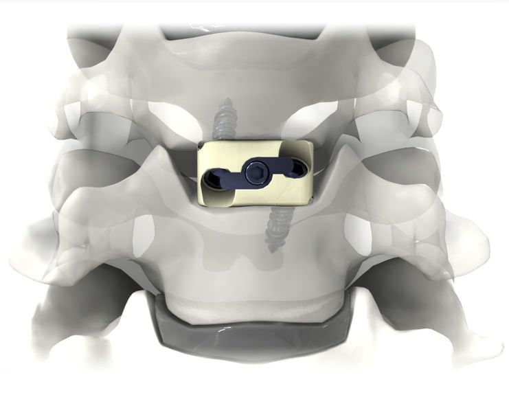 Cervical interbody fusion cage / anterior PRO-LINK® Life Spine