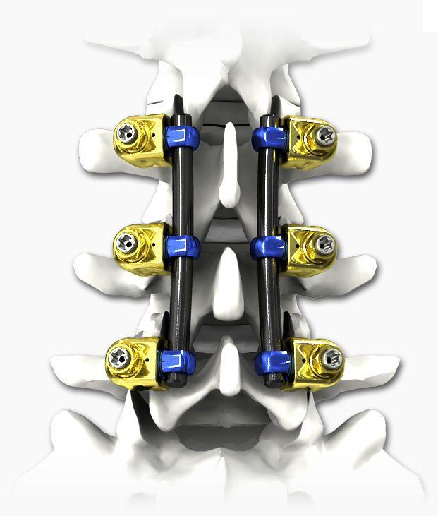 Thoraco-lumbar spinal osteosynthesis unit / thoracic / lumbar / posterior PILOT® Life Spine