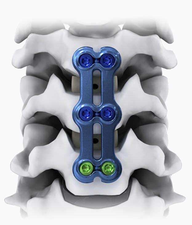 Cervical arthrodesis plate / anterior / 2 levels NEO®-SL Life Spine