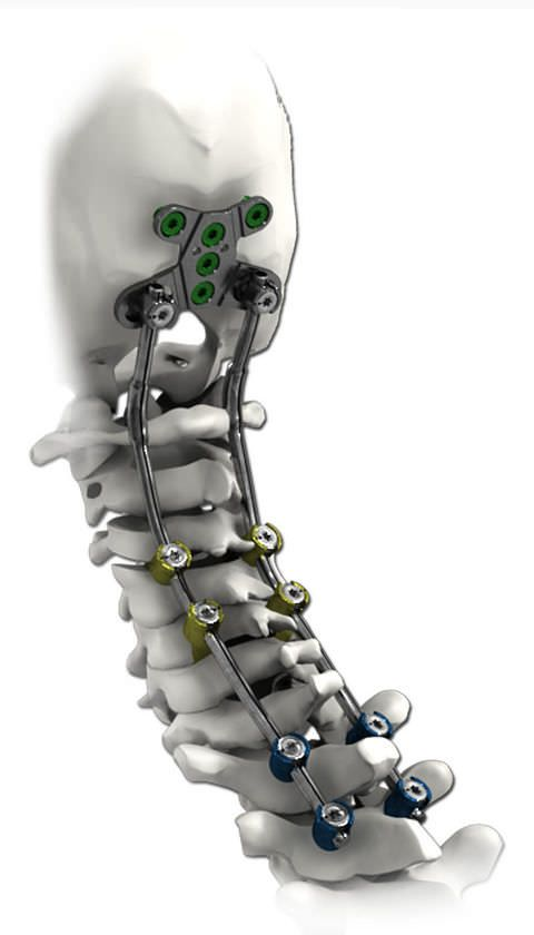 Occipito-cervico-thoracic spinal osteosynthesis unit / posterior SOLSTICE® Life Spine