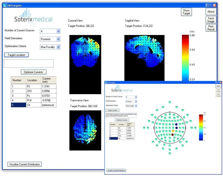 Neurophysiological stimulation software / medical HD-Targets™ Soterix Medical