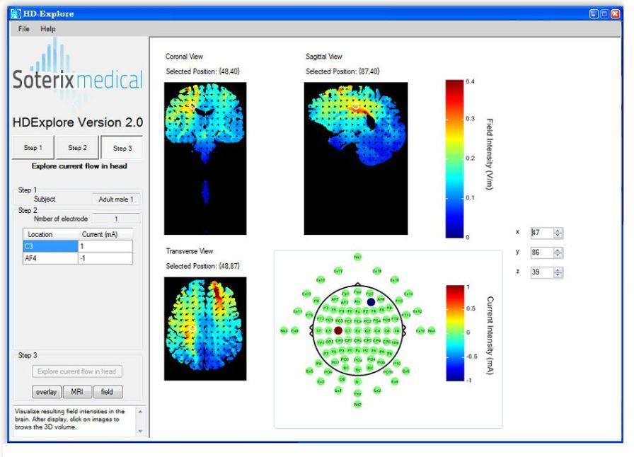 Neurophysiological stimulation software / medical HD-Explore™ Soterix Medical
