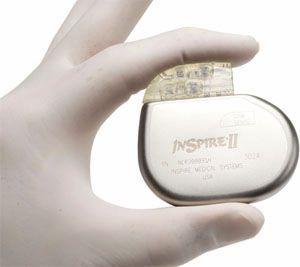 Implantable neurostimulator / for upper airway stimulation Inspire Medical