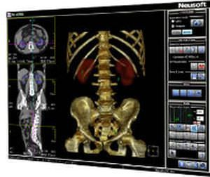 Analysis software / viewing / CT / urology UroCARE Neusoft Medical Systems