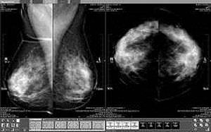 Analysis software / diagnostic / medical / mammography MammoCAD Neusoft Medical Systems