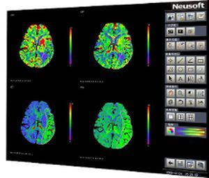 Analysis software / diagnostic / import / medical CT Perfusion Neusoft Medical Systems